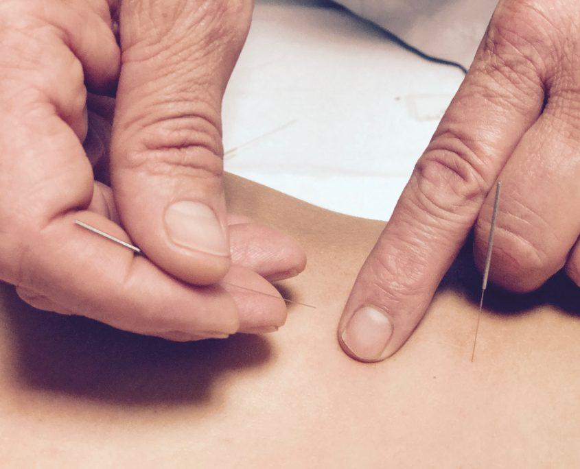 Acupunctuur 2